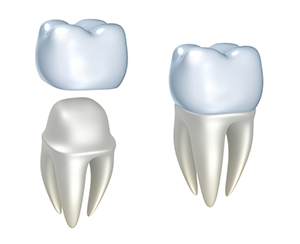 Dental Crowns in Columbus, GA